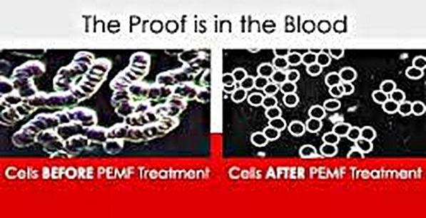 pemf blood