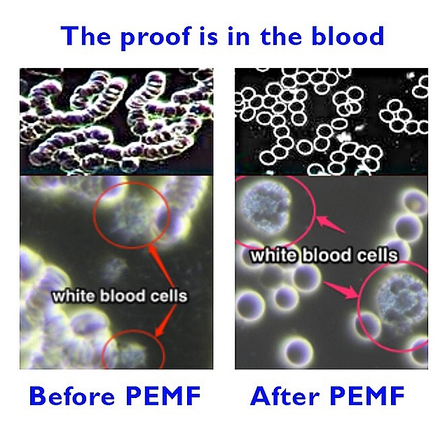 PEMF BLOOD RESULTS